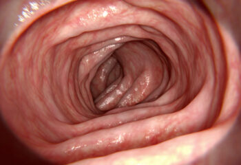 Treating IBS at 360 Health Consultancy